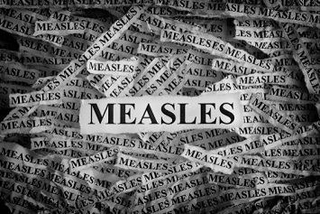 Measles in the news